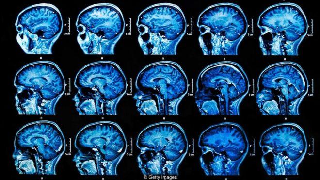 avaliacoes reabilitacoes neuropsicologicas 117